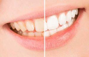 علت تغییر رنگ دندان ها