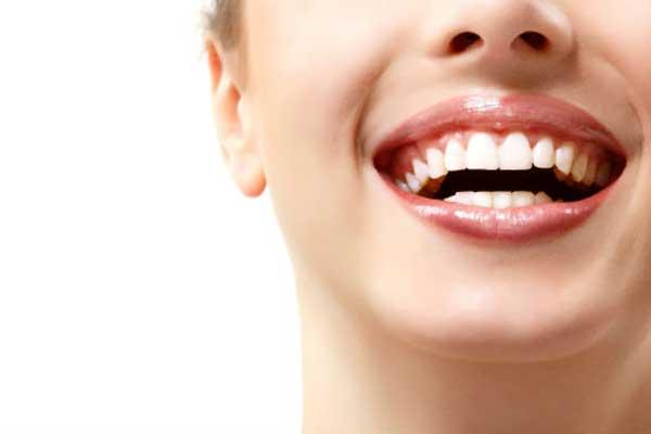 درمان لبخند لثه ای با کانتورینگ لثه